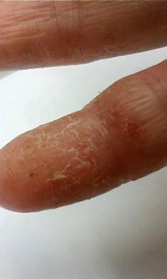 手の小指にできた汗疱が破れ乾燥している状態