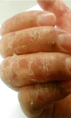 ステロイド外用薬の副作用が軽快してきた状態。落屑が起きている。